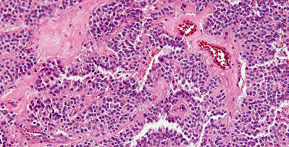 highly magnified pancreatic tumor cells, stained pink